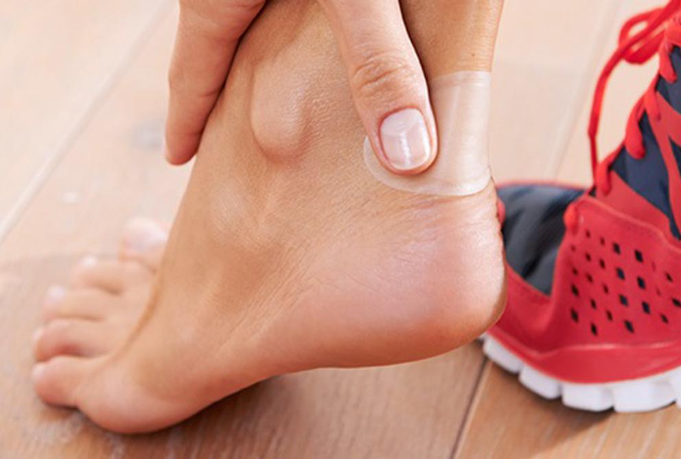 voetblaren